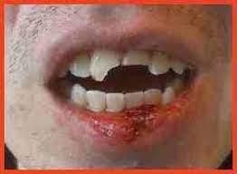 sognare caduta denti
